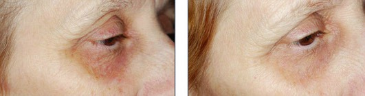 Glytone Eye and Lip Peel