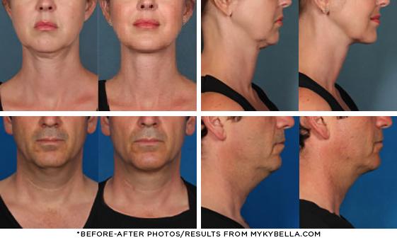 Kybella Skin By Design Dermatology Amp Laser Center San