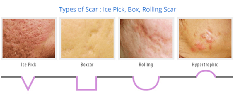 Natural Products To Clear Acne Scars