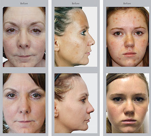 Visao MD Prestige Peels. Used for age spots, pigment issues and acne
