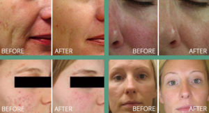 Set of 4 before and after photos featuring laser genesis treatment