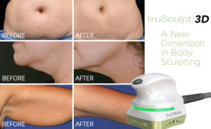 Series of 3 images, stomach, cheek and arm, before and after truSculpt 3D treatment